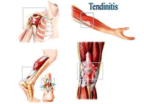 Tratamientos naturales para la tendinitis