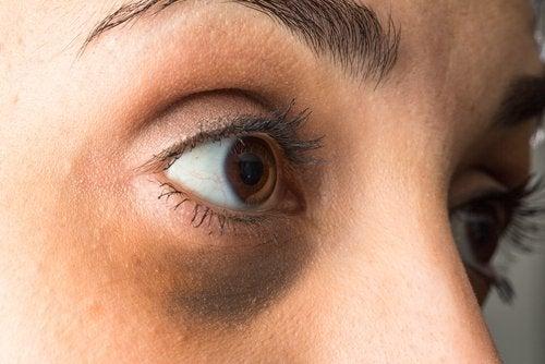 6 remedios naturales para aliviar las ojeras