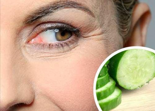 Disimula las arrugas con estos remedios naturales
