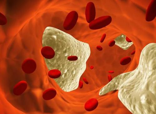 Colesterol-en-la-sangre