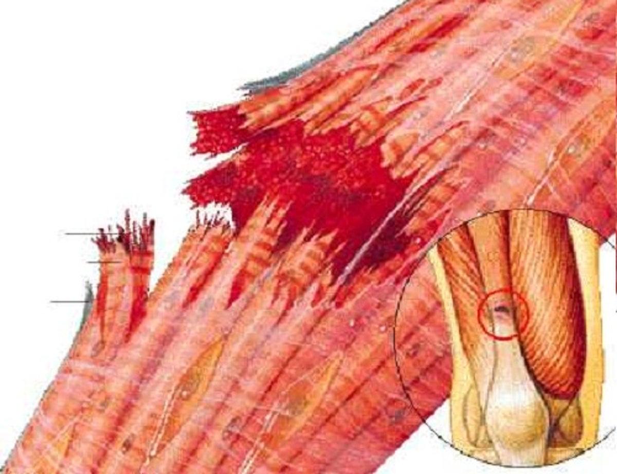 reposo para desgarre muscular