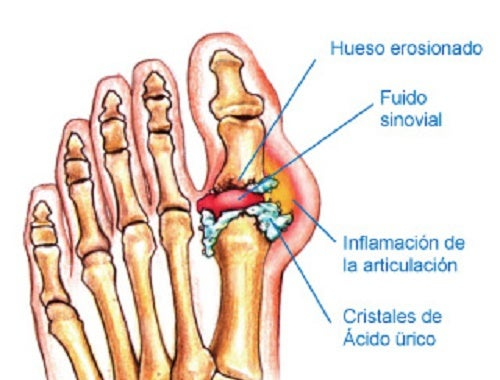 el acido urico provoca comezon remedios caseros para el acido urico gota valores patologicos de acido urico