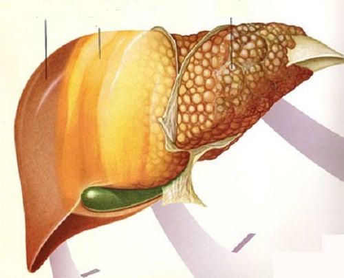 6 alimentos que combaten el hígado graso