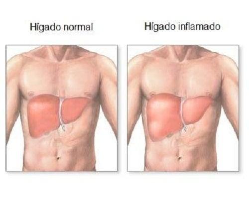 ¿Cómo saber si nuestro hígado está inflamado?