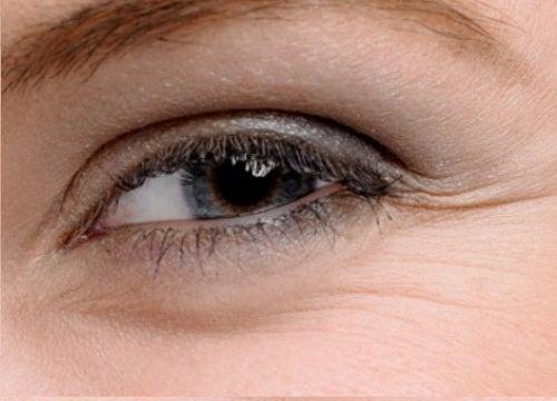 Remedios-para-el-contorno-de-los-ojos
