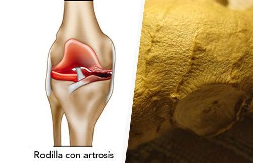 Cómo aliviar los síntomas de la artrosis