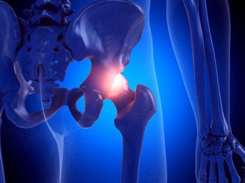 Desgaste de cadera: síntomas y prevención