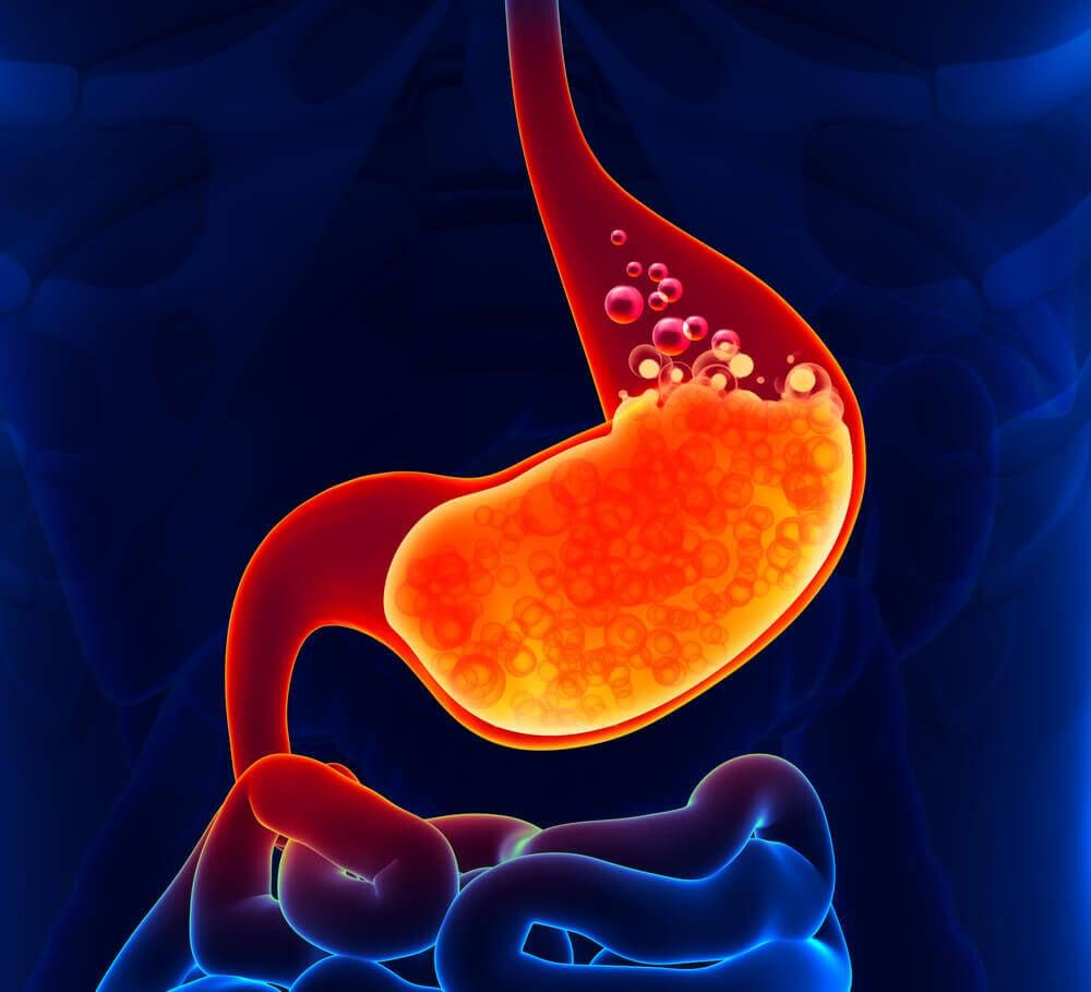 ¿Cuándo se puede manifestar el ardor o acidez estomacal?
