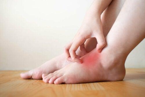 Conociendo la hidropesía: síntomas y tratamiento