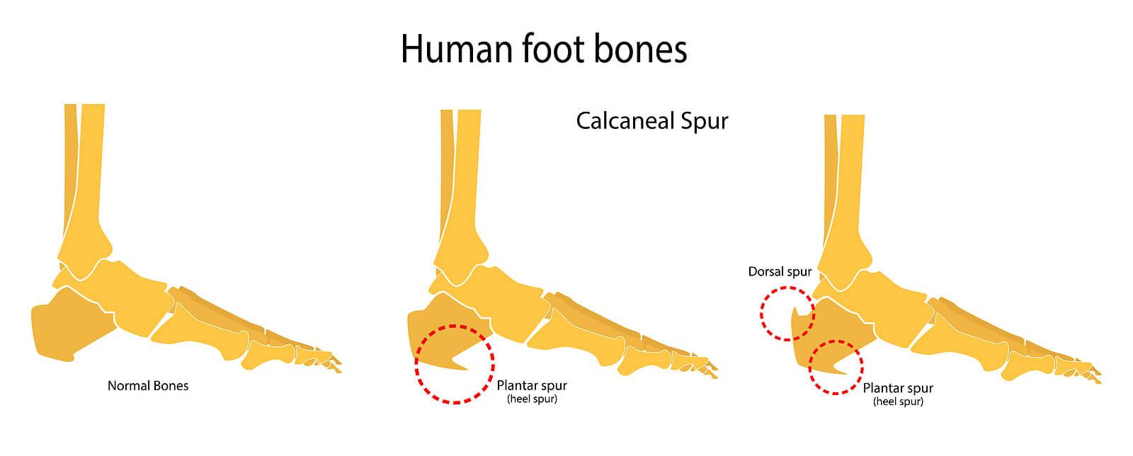 Huesos de los pies: espolón calcáneo.
