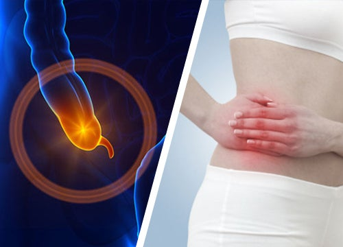 Dolor por apendicitis aguda