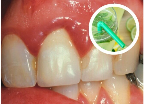 Dolor de dientes y encias en el embarazo