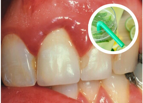 Efectivos enjuagues caseros para las encías sangrantes