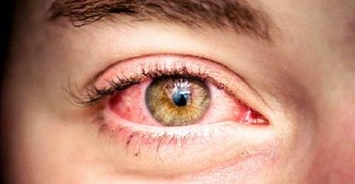 6 remedios para aliviar el enrojecimiento en los ojos