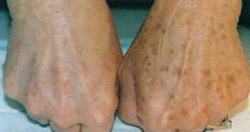 Manchas en las manos: ¿cómo podemos atenuarlas?