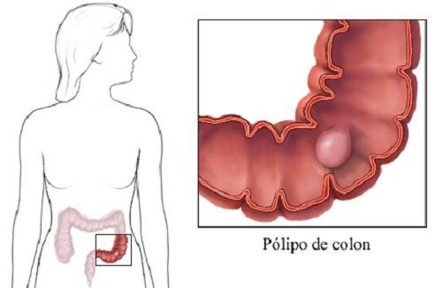 Pólipos en el colon: síntomas que debes conocer