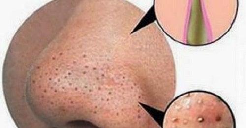 El acné a la diabetes