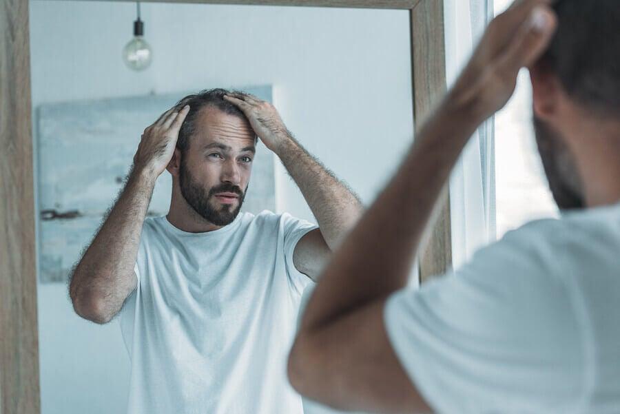 Hombre con alopecia
