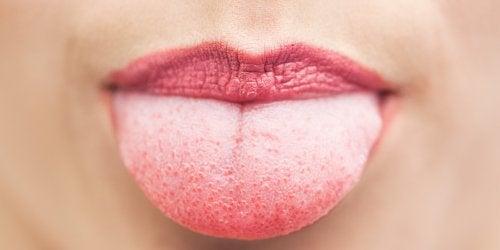 lengua reseca y rojiza