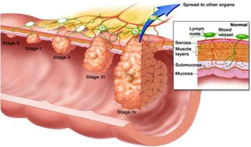 polipo colon