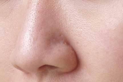 poros-dilatados