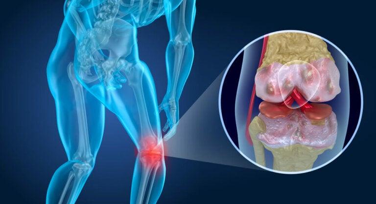 Qué es la artrosis: síntomas, prevención y tratamiento