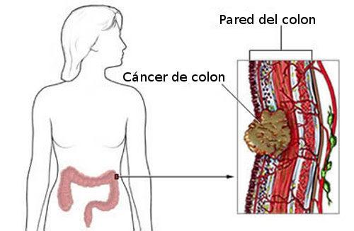 Síntomas del cáncer colorrectal en mujeres
