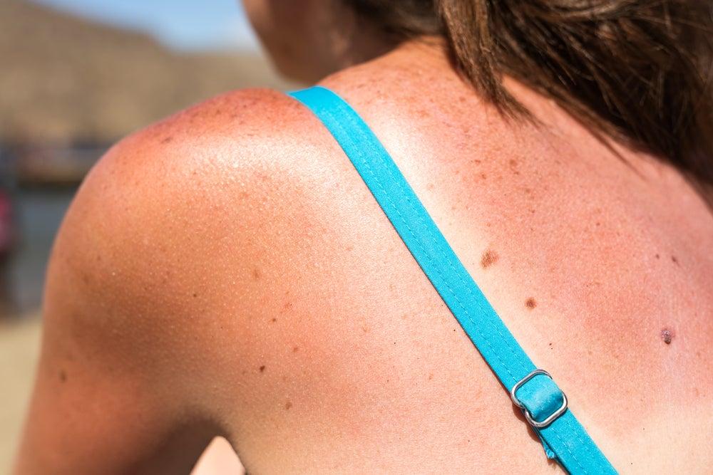 Cómo reducir los efectos del sol en la piel