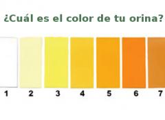 Color-de-orina