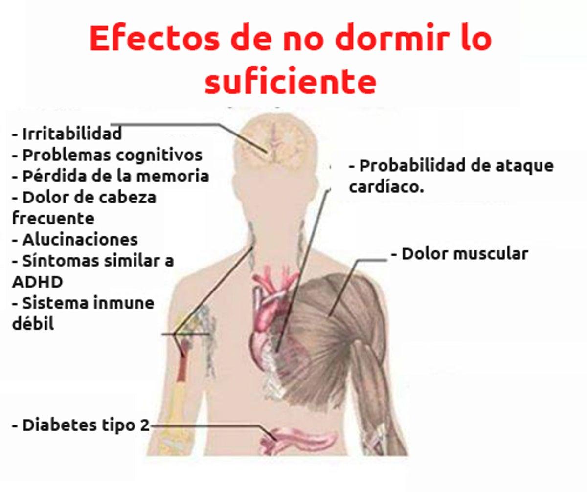 Cuerpo sintomas dormido de