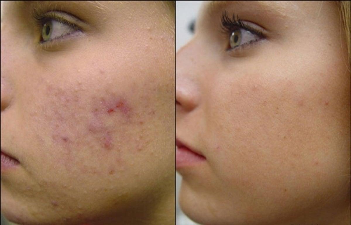 mascarillas caseras para la cara anti acne