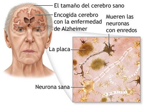 5 consejos para prevenir la enfermedad de Alzheimer