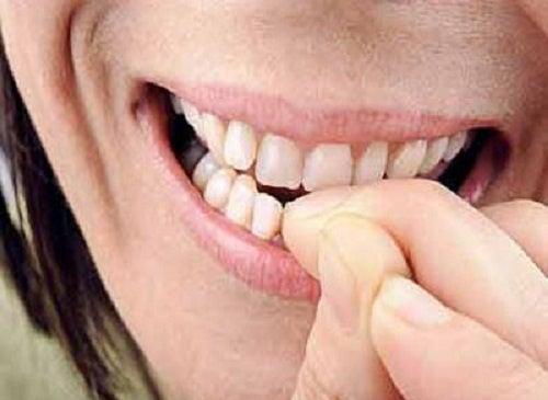 ¿Por qué morderse las uñas es perjudicial para la salud?