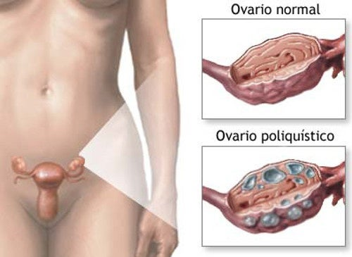 Resultado de imagen de ovarios poliquisticos