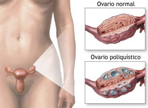 Tratamiento natural para el síndrome de ovarios poliquísticos