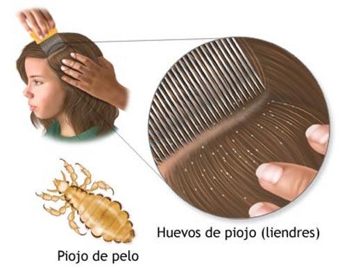 El aceite para los cabellos después de la alheña