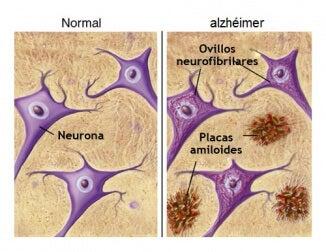 Comparación entre un cerebro normal y un cerebro con la enfermedad de Alzheimer