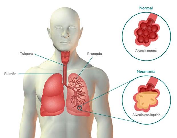 Neumonía: síntomas y remedios naturales complementarios