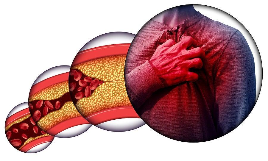 La obstrucción de las arterias coronarias y el peligro que representan para la salud