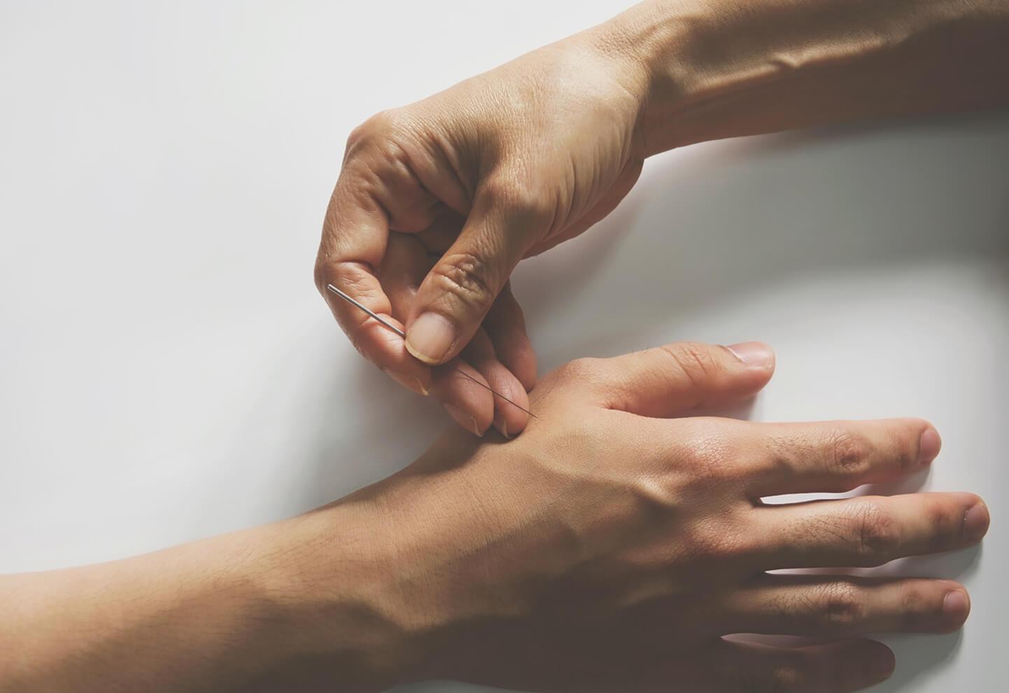 Puntos exactos de auriculoterapia para adelgazar