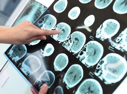 Principio de alzhéimer, ¿se puede detener el proceso?