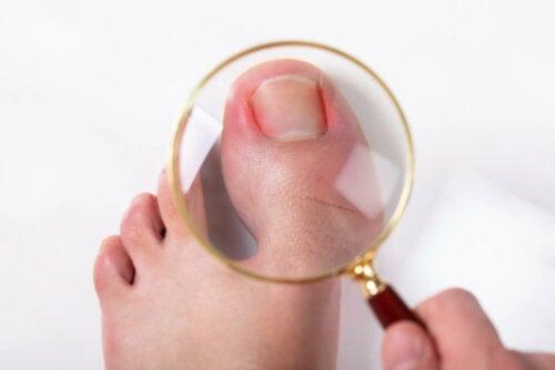Tratamiento casero para las uñas encarnadas del pie
