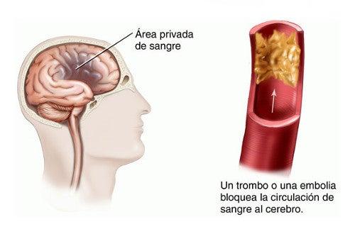 Accidente cerebrovascular en la mujer: Factores de riesgo