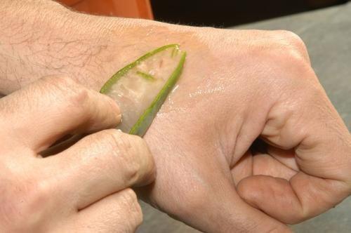 Homem passando gel de aloe vera na mão