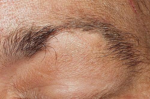 Alopecia en cejas y pestañas: ¿Qué tratamiento puedo seguir?