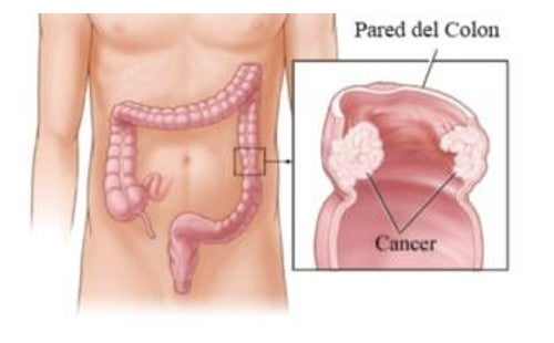 5 consejos para intentar prevenir el cáncer de colon