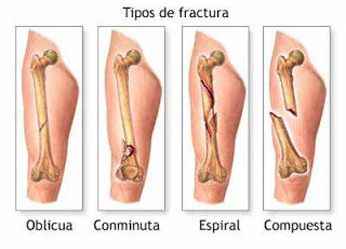 5 síntomas del cáncer óseo primario que debes conocer