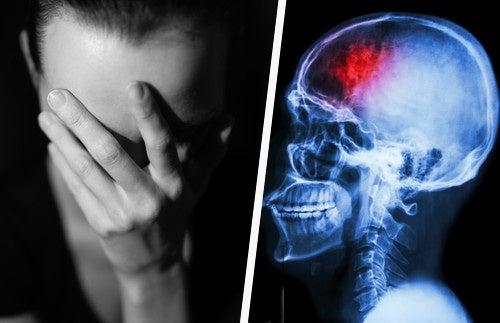 Disparadores y tratamientos de la cefalea tensional: ¡Conócelos!