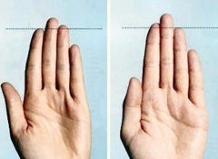 Dedos