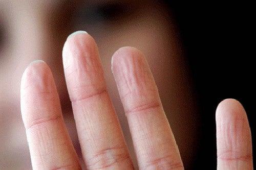 Dedos-arrugados